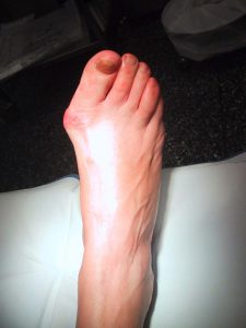 bunion / hallux valgus deformity