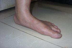 flat-foot