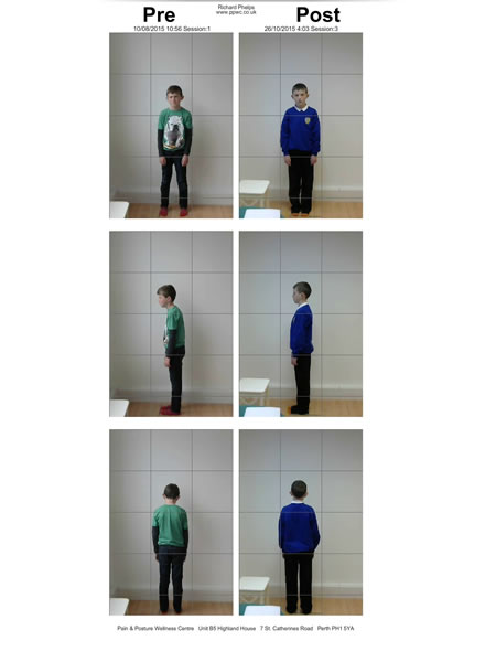 Poor posture correction