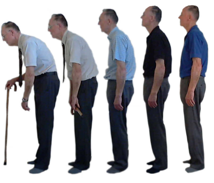 Causes of Bad Posture