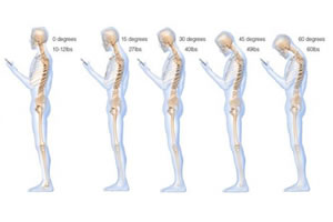 Why Is Good Posture So Important?