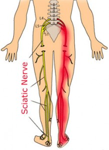 What is the best treatment for sciatica?