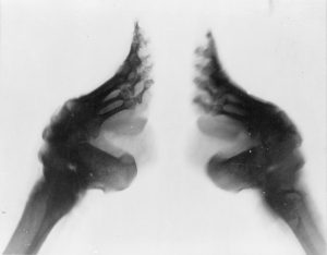 bound_feet_x-ray