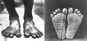 barefoot-indigenous