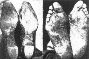 barefoot-shoed
